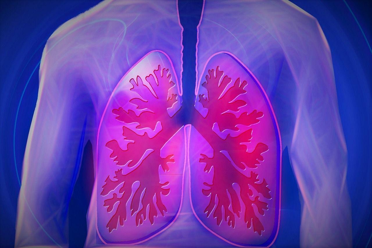 Trapianto di polmone: sopravvivenza, aspettativa di vita e possibili complicanze