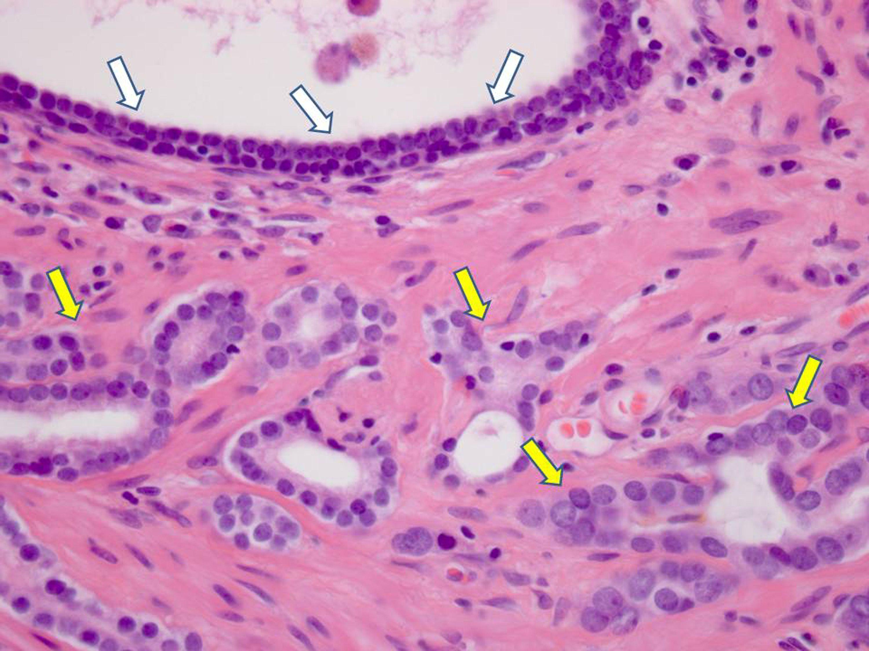 In Italia il tumore alla prostata si cura con una nuova terapia a ultrasuoni