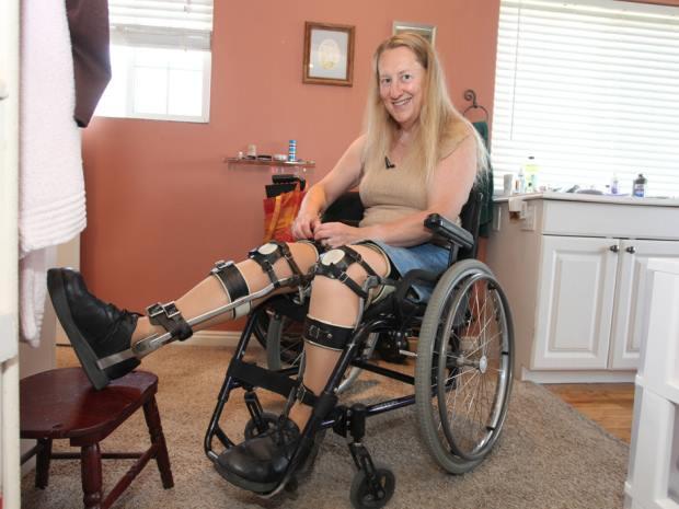 Vuole diventare disabile e vivere su una sedia a rotelle: sogna l'amputazione delle gambe