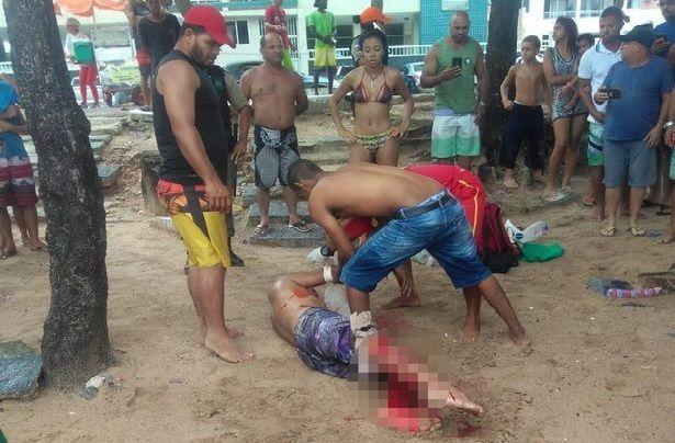 Attacco di uno squalo in Brasile, amputata la gamba per salvargli la vita