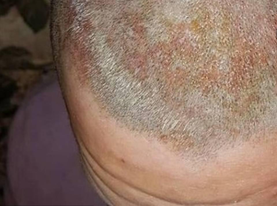 Va dal parrucchiere per un cambio look ma finisce in ospedale con ustioni in testa