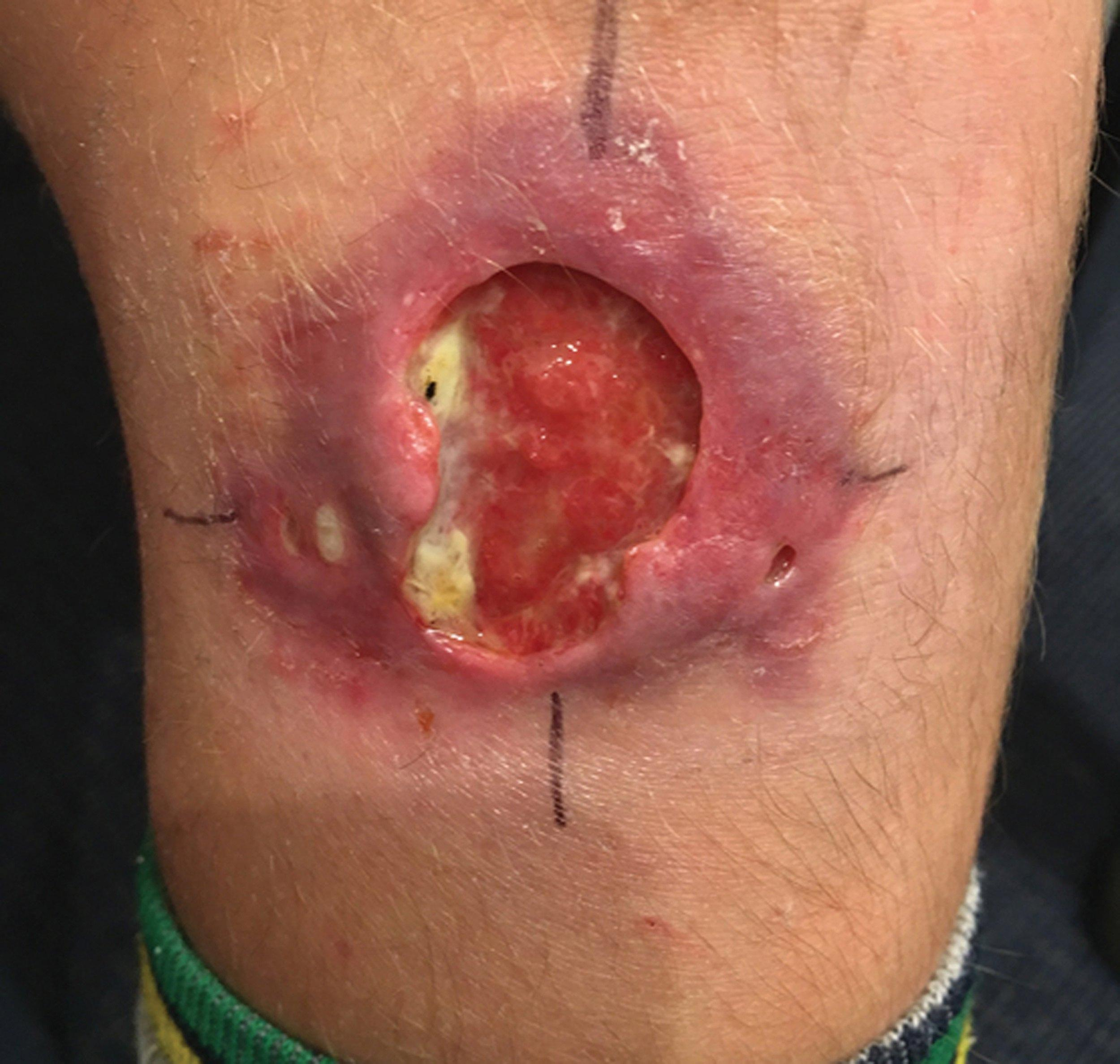 ulcera del buruli
