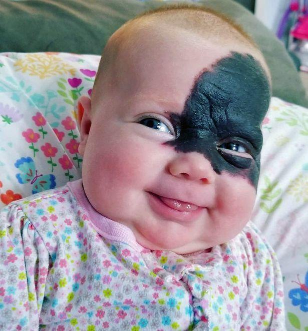 Bambina nasce con mezzo viso coperto da una macchia: ecco la bellissima Natalie
