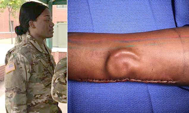 Soldatessa perde l'orecchio, glielo fanno ricrescere nel braccio