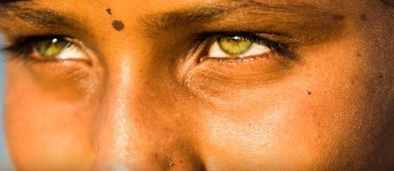 I 10 bambini con il colore degli occhi unico al mondo