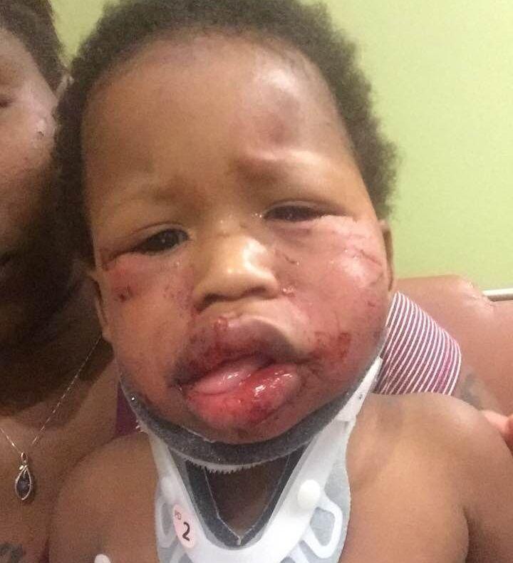 """Bambino di un anno sfigurato in asilo. La madre: """"Voglio giustizia per Jesse"""""""
