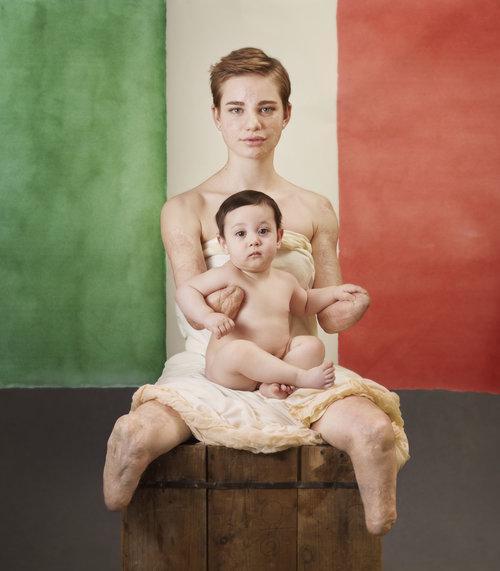 Bebe Vio posa per Anne Geddes per il vaccino contro la meningite