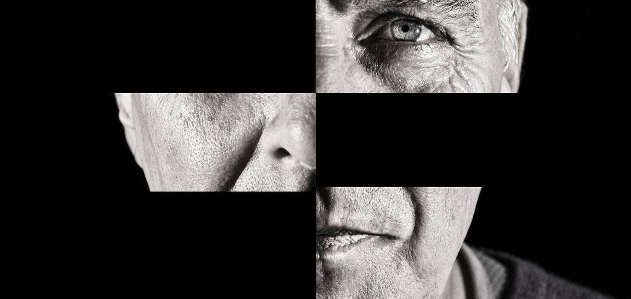 Cancro agli occhi scambiato per emicrania provoca un enorme buco nel volto di un uomo