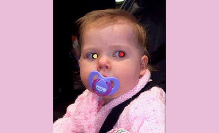 Fa una foto alla figlia e scopre che ha un tumore all'occhio dai riflessi del flash