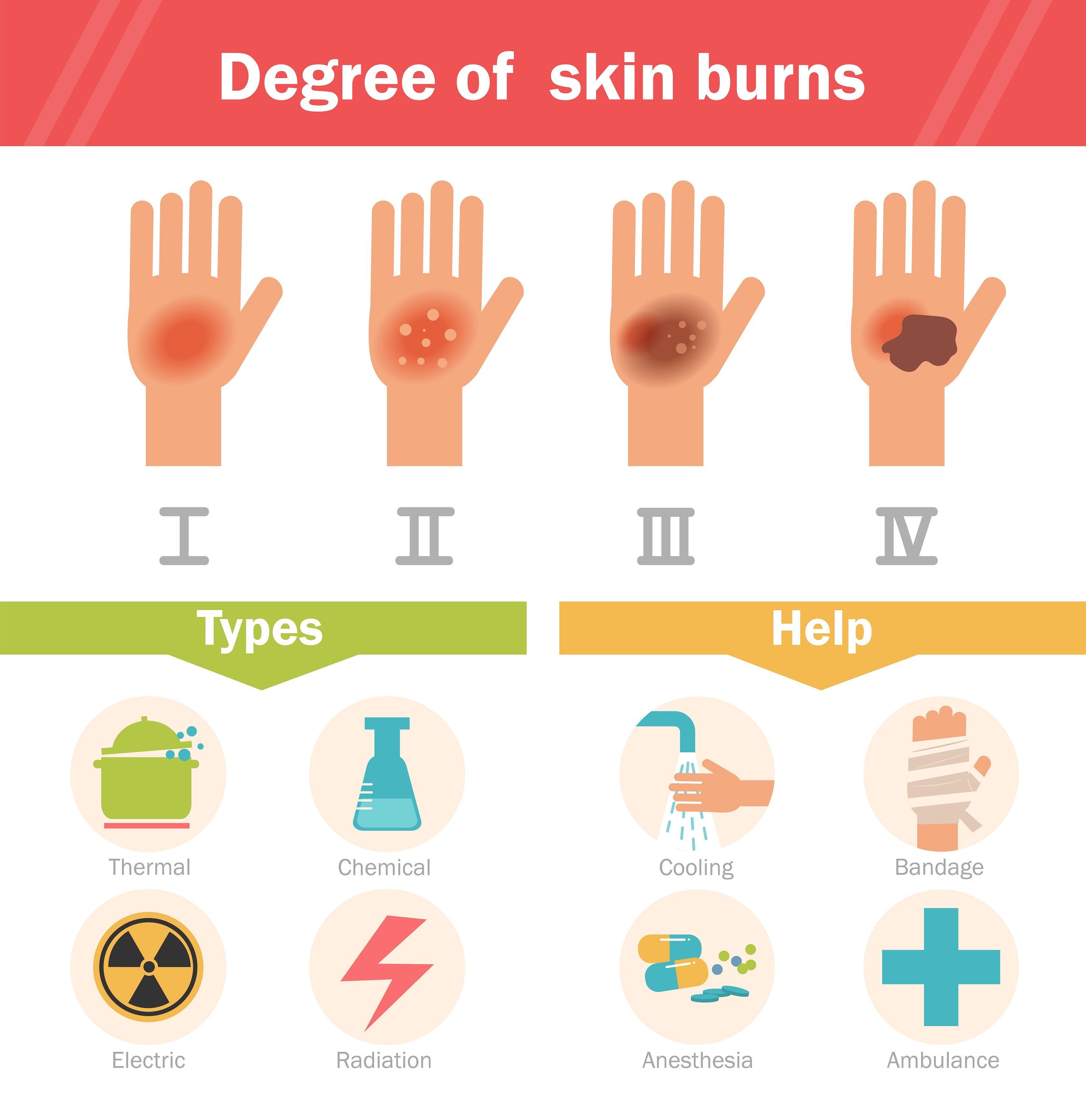 Bimbo gioca con detergente per forno: ustioni di 3° grado e trapianto di pelle