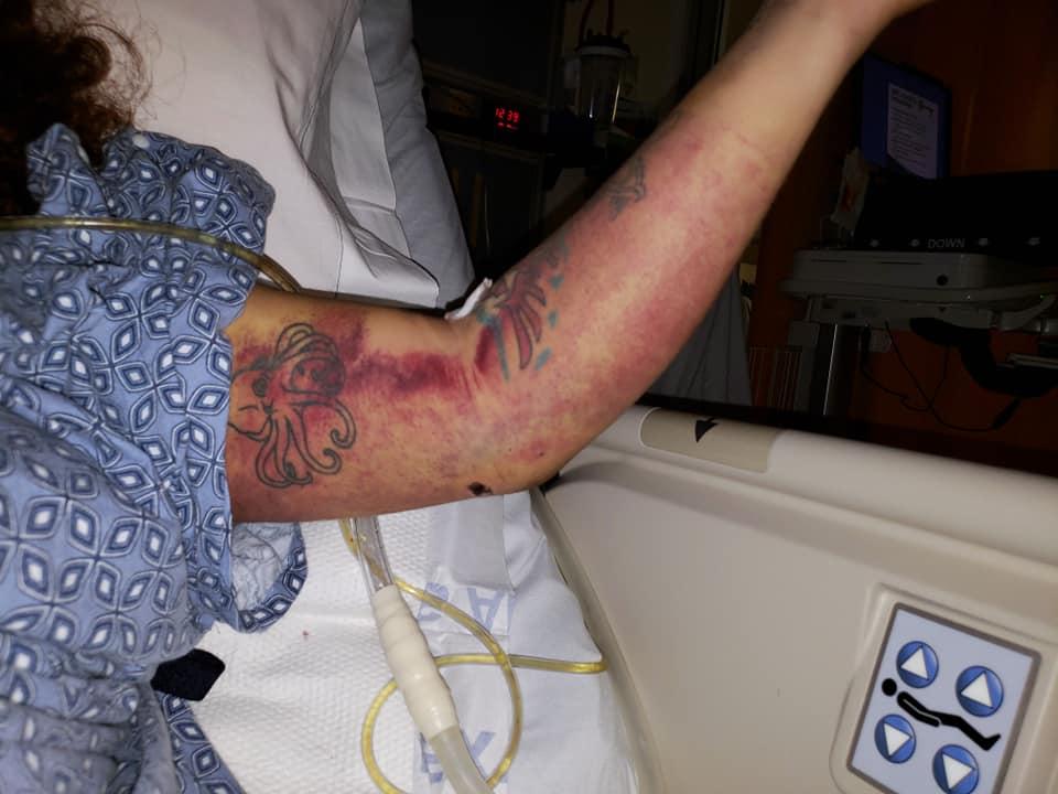 California, ragazza si schianta e sopravvive una settimana bevendo l'acqua del radiatore