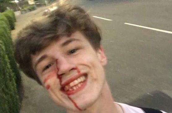 Ragazzo gay picchiato risponde agli omofobi con un sorriso sanguinante: la foto diventa virale