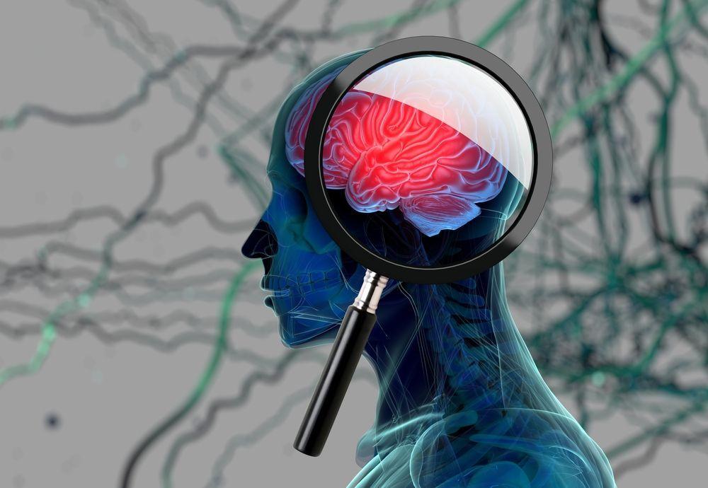 Aspirina per curare l'Alzheimer, un'arma contro il terribile morbo