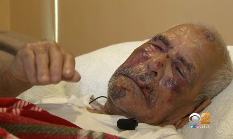 'Torna al tuo paese': anziano di 92 anni ridotto in fin di vita