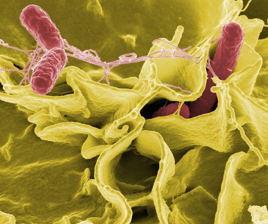 Listeria e salmonella: 12 consigli per evitare intossicazioni alimentari
