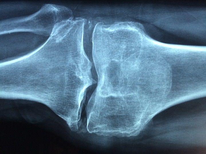 sviluppo osseo