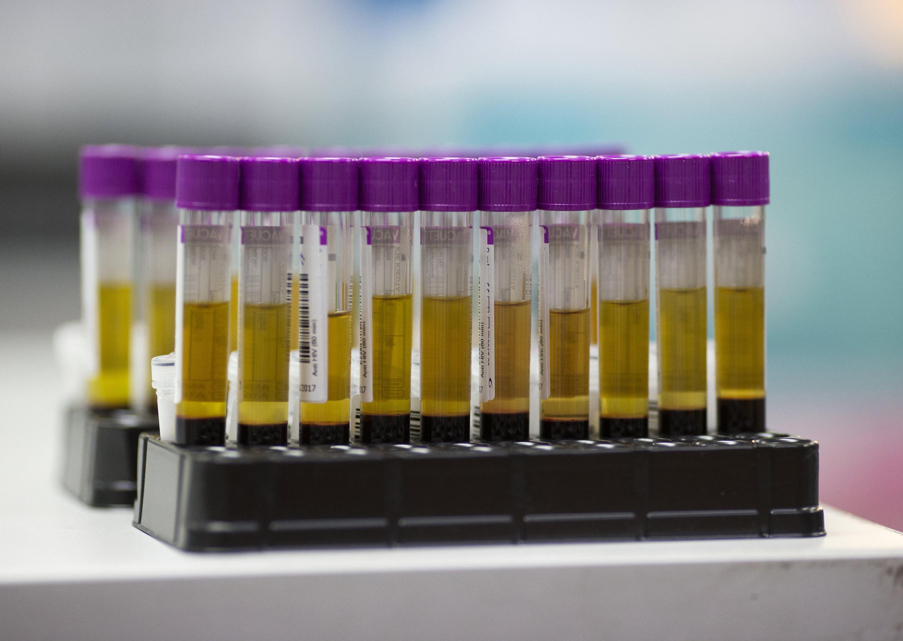 AIDS, infezioni in crescita: risultati dello studio 'Drive-Forward'