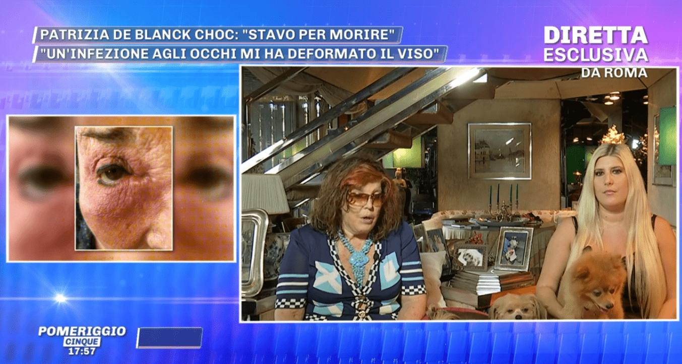 Patrizia De Blanck: 'Ho rischiato la vita, le lacrime per la morte del mio cane hanno fatto infezione'