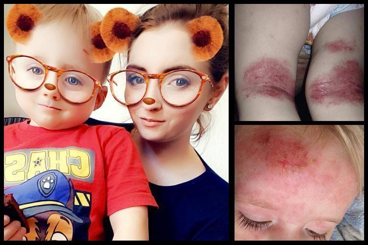 'Mio figlio è guarito dall'eczema grazie a una crema economica'