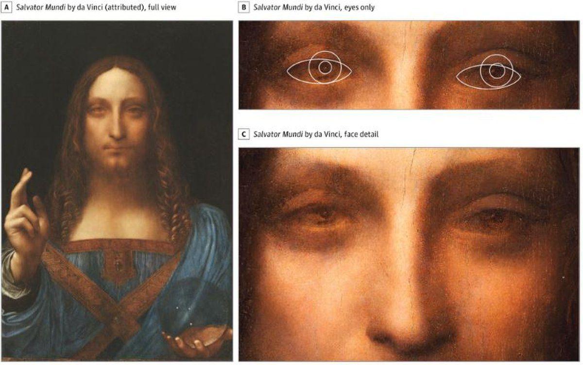 Leonardo da Vinci era strabico: lo strabismo spiega la profondità nei suoi dipinti