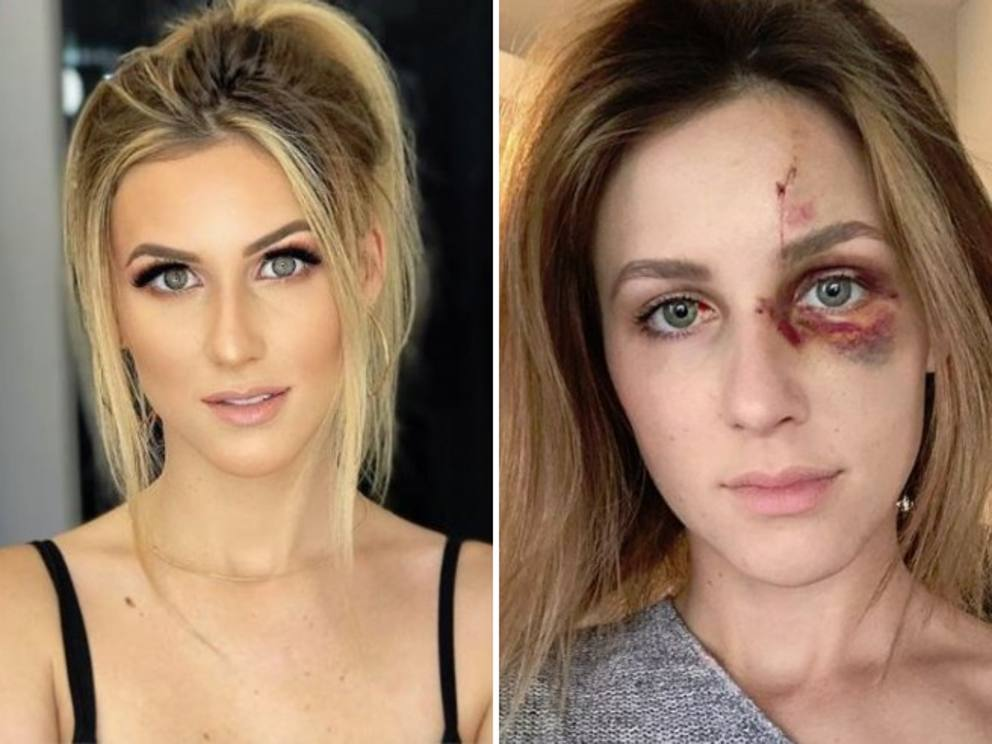 Melissa, picchiata dal fidanzato per una foto scollata su Instagram