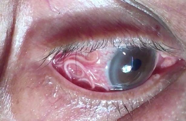 Uomo rischia la vista per un verme di 15 cm nell'occhio