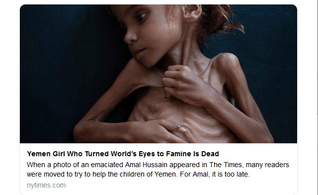 Amal è morta di fame: a 7 anni era diventata simbolo della guerra in Yemen
