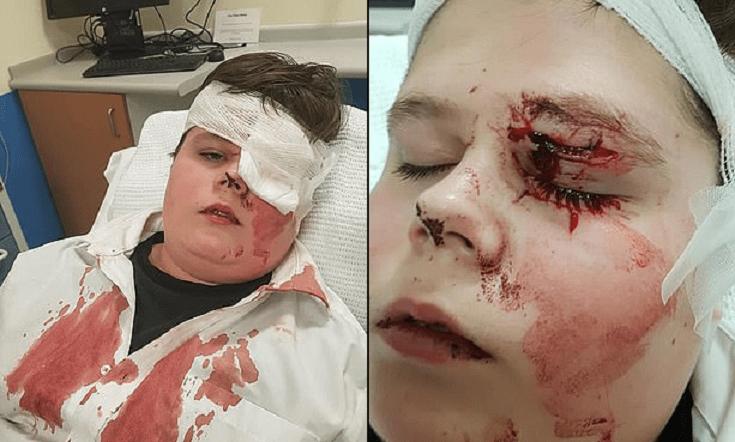 15enne aggredito da un bullo rischia la vista