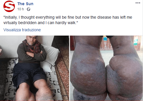 La storia di Shahid, malato di elefantiasi dopo la puntura di una zanzara