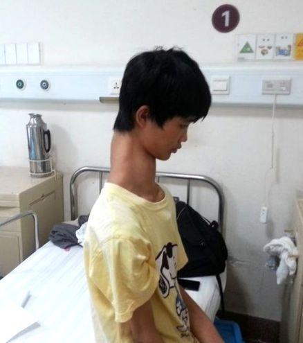 Ha il collo più lungo del normale: Fu Wengui ha tre vertebre in più