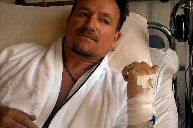 Bono incidente in bici fratture