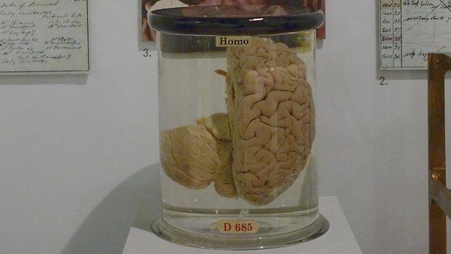 Cento cervelli in formaldeide scomparsi dall'università del Texas: mistero risolto