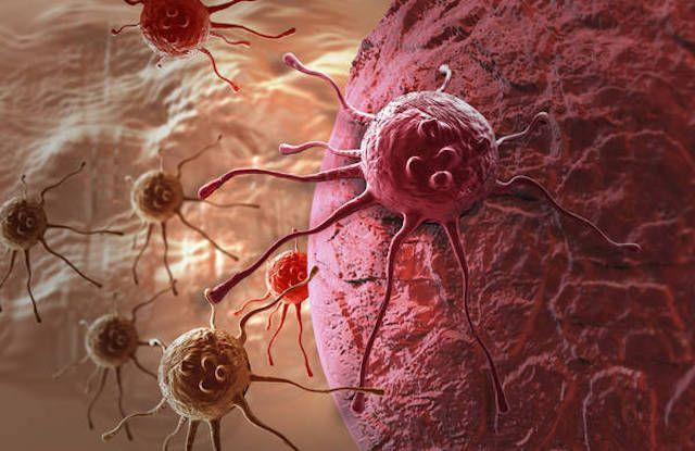 La sfortuna causa più tumori dello stile di vita