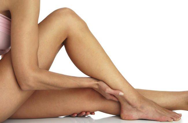 Varici alle gambe: sintomi e cosa fare