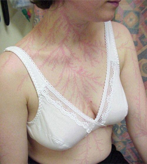 Figure di Lichtenberg: i 'tatuaggi' frattali creati dalle scariche elettriche