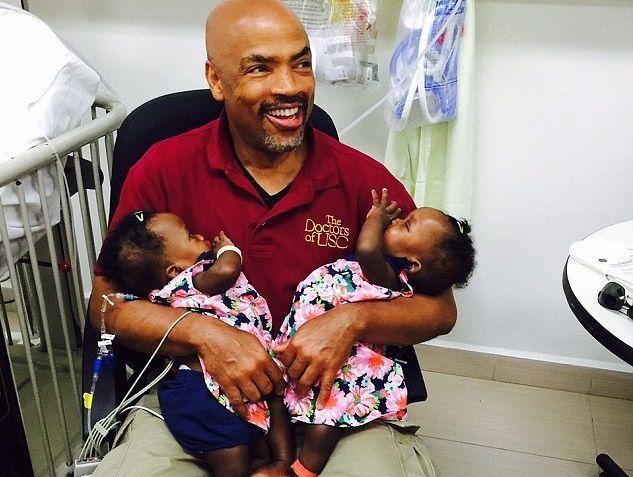 Gemelle siamesi separate dopo un'operazione di sette ore ad Haiti