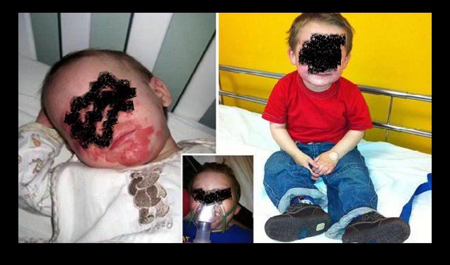 Bimbo malato di eczema chiede di morire nel giorno del suo quinto compleanno
