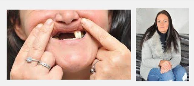 Si sottopone a sbiancamento dentale e perde gli incisivi
