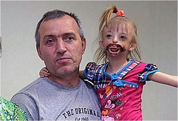 Bambina nata senza labbra, allontanata da parenti e rifiutata dalle scuole