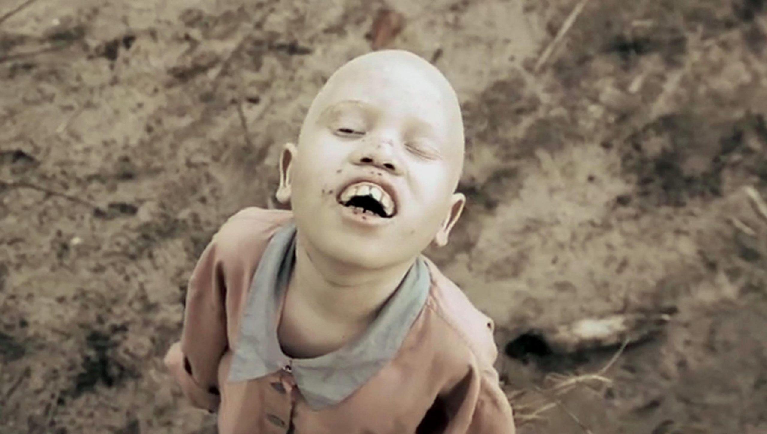 Albini di Africa quando dramma è essere bianchi