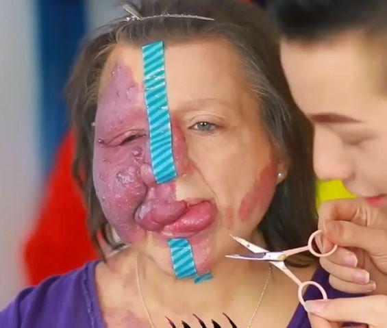Ha il volto sfigurato da una rara malattia il figlio la rende bellissima con il make up