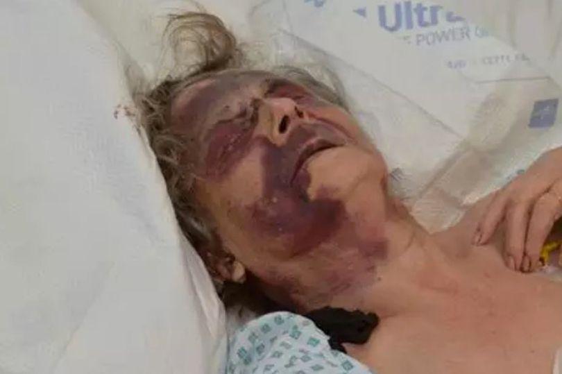 donna di 90 anni picchiata