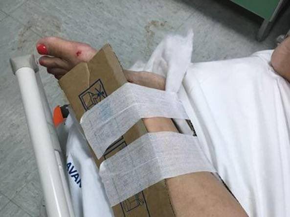 Reggio Calabria in ospedale mancano i gessi pazienti medicati con tutori di cartone
