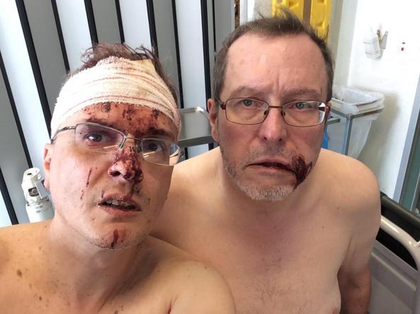 Belgio, fumettista italiano e marito picchiati: 'Colpiti perché gay'