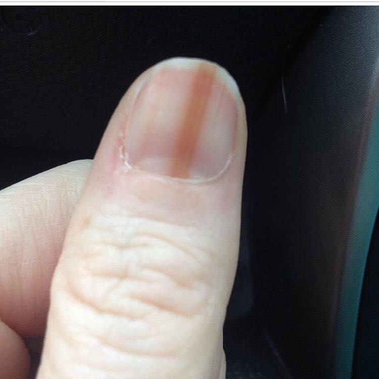 Scopre il melanoma all'unghia dopo la manicure in gel