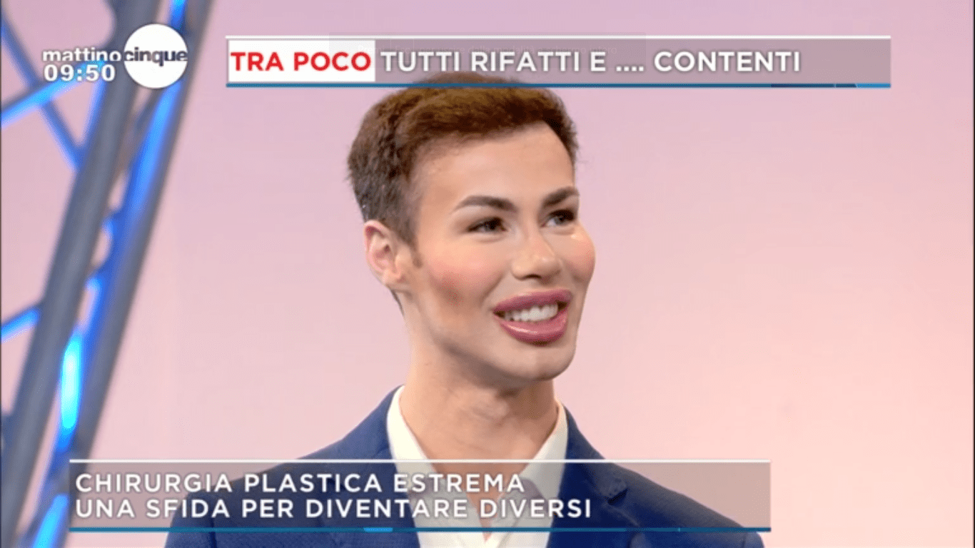 Angelo Sanzio, il Ken italiano: 'La chirurgia diventa una dipendenza, come le sigarette'