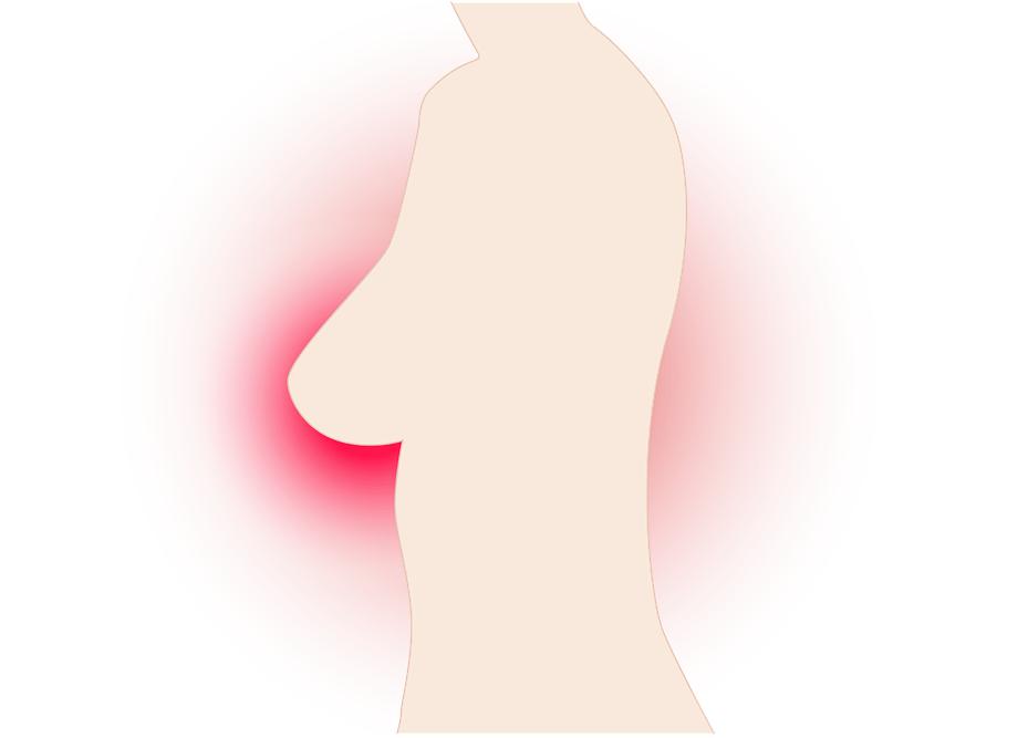 Tumore al seno: nuova terapia dà risultati incoraggianti