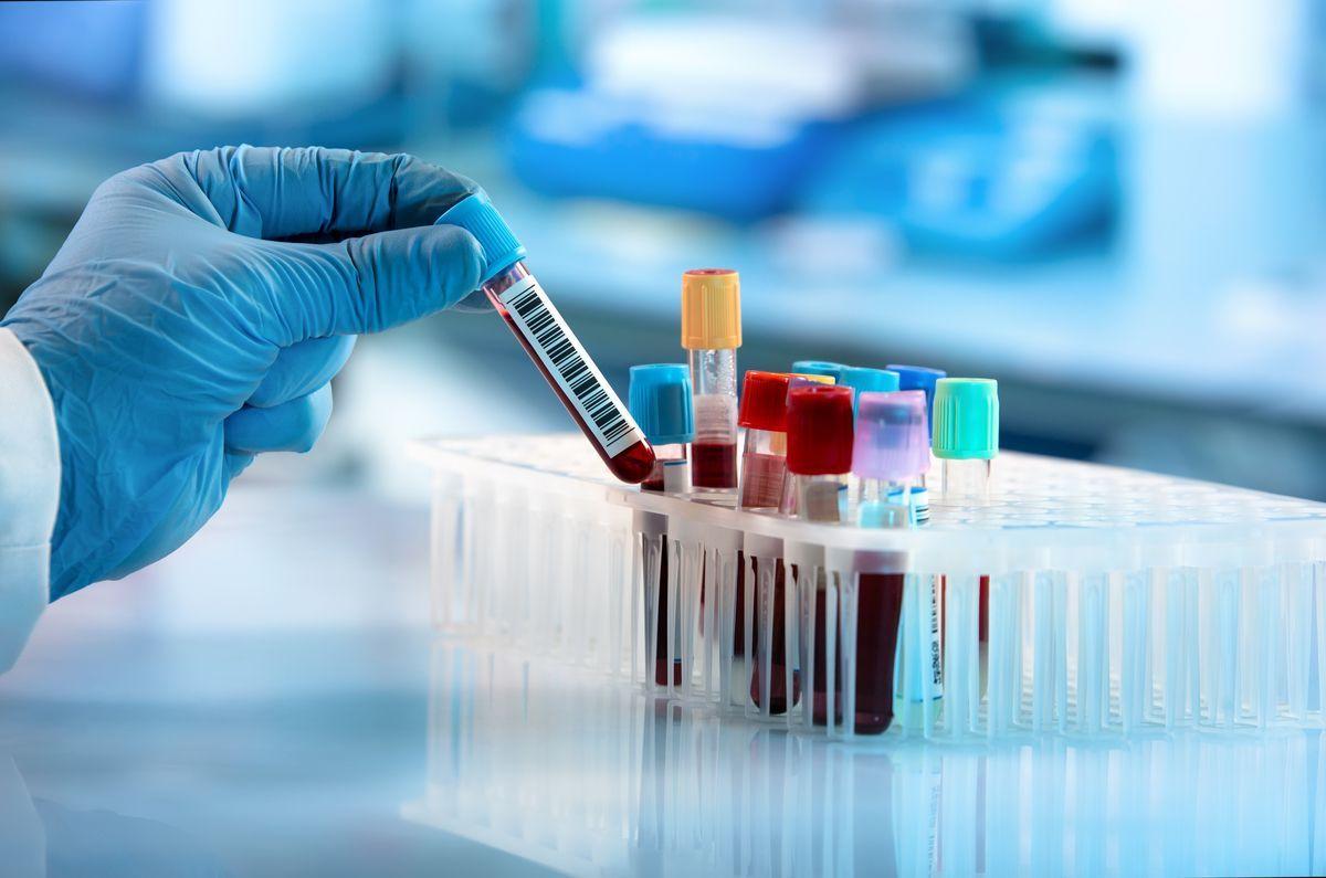 Coronavirus: in Cina prime dosi del vaccino a novembre