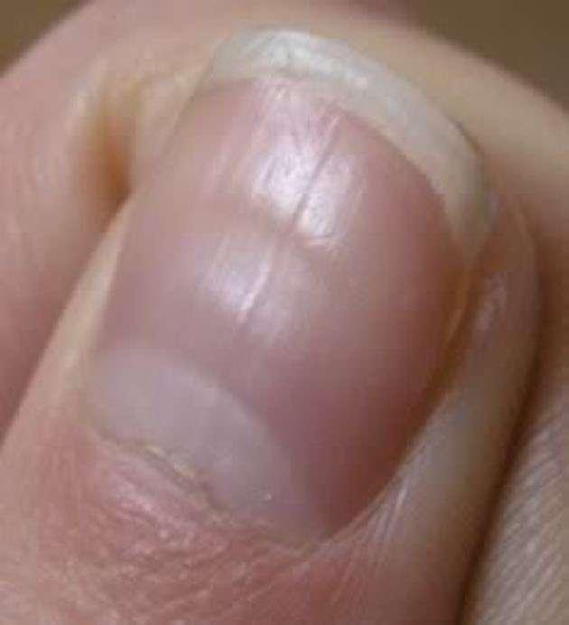 Striature delle unghie