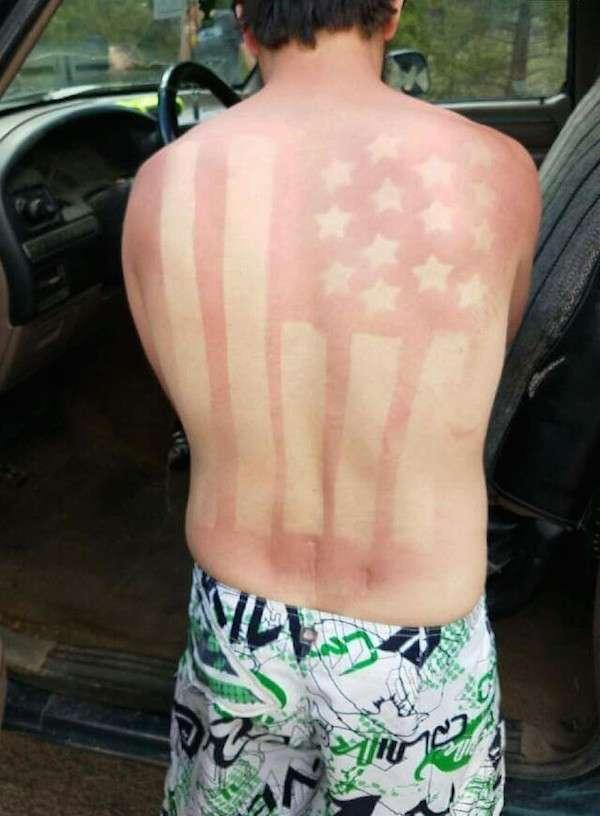 Abbronzatura patriottica